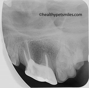 xray root canal crown 1 copy 300x297 - Fractured Teeth
